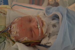Good bye EEG!