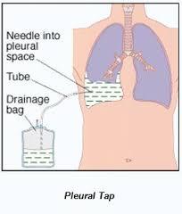 pleural 2